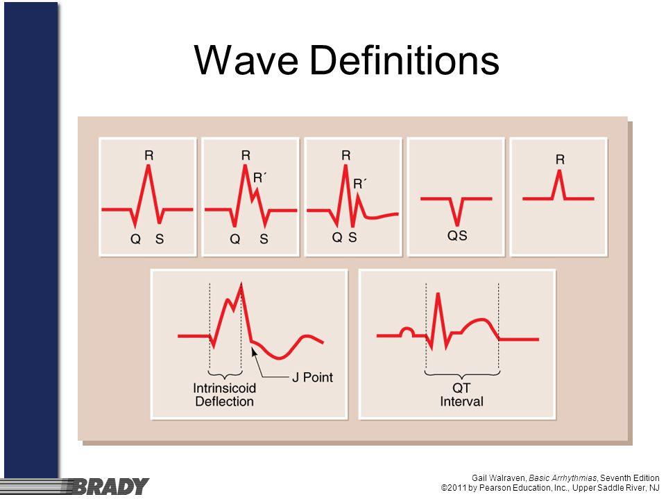 Gail Walraven, Basic Arrhythmias, Seventh Edition ©2011 by Pearson Education, Inc., Upper Saddle River, NJ Wave Definitions