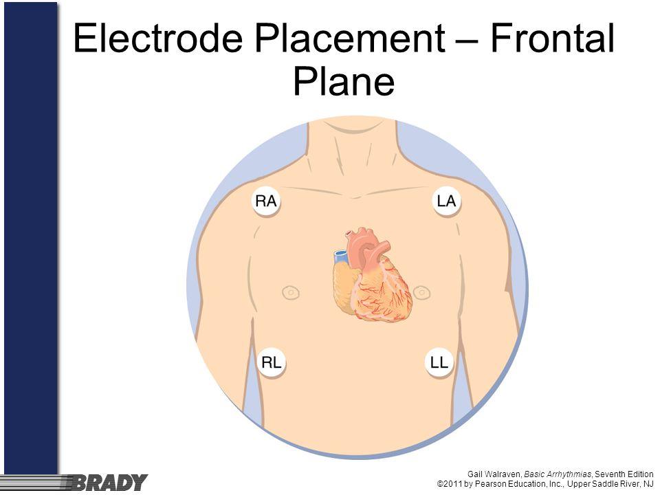 Gail Walraven, Basic Arrhythmias, Seventh Edition ©2011 by Pearson Education, Inc., Upper Saddle River, NJ Electrode Placement – Frontal Plane