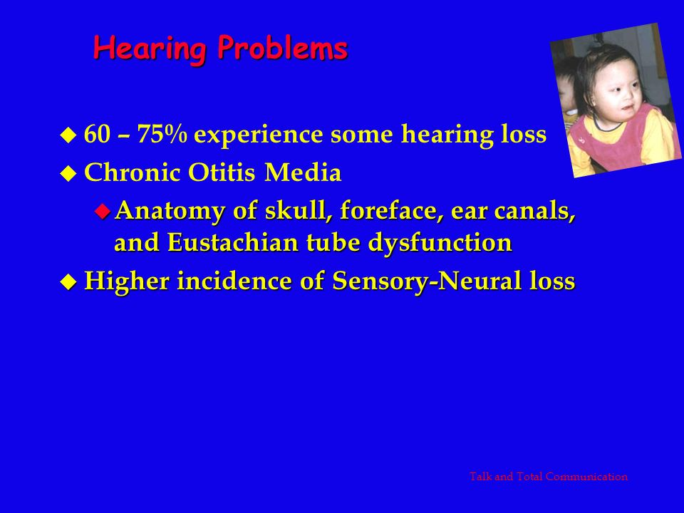 Hearing Problems u 60 – 75% experience some hearing loss u Chronic Otitis Media u Anatomy of skull, foreface, ear canals, and Eustachian tube dysfunct