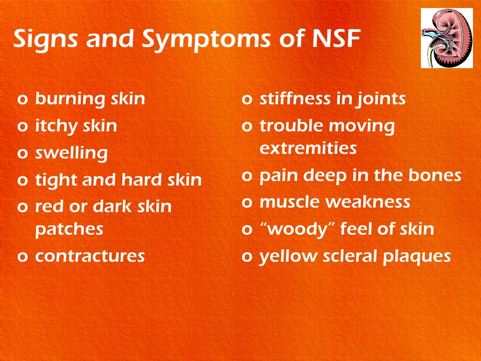 Signs and Symptoms of NSF oburning skin oitchy skin oswelling otight and hard skin ored or dark skin patches ocontractures ostiffness in joints otroub