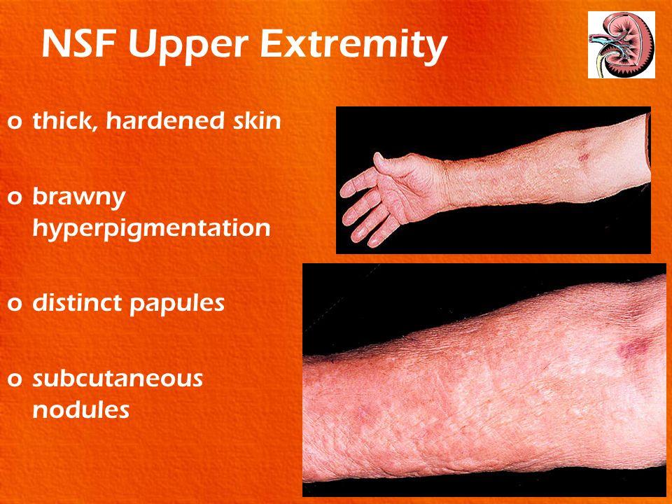 NSF Upper Extremity othick, hardened skin obrawny hyperpigmentation odistinct papules osubcutaneous nodules