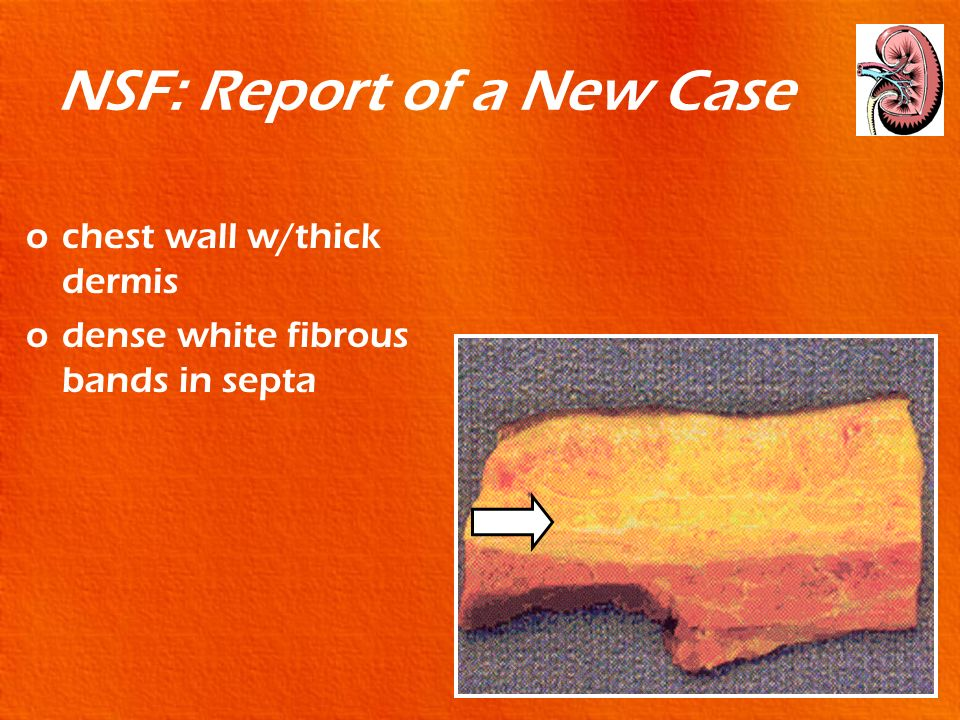 NSF: Report of a New Case ochest wall w/thick dermis odense white fibrous bands in septa