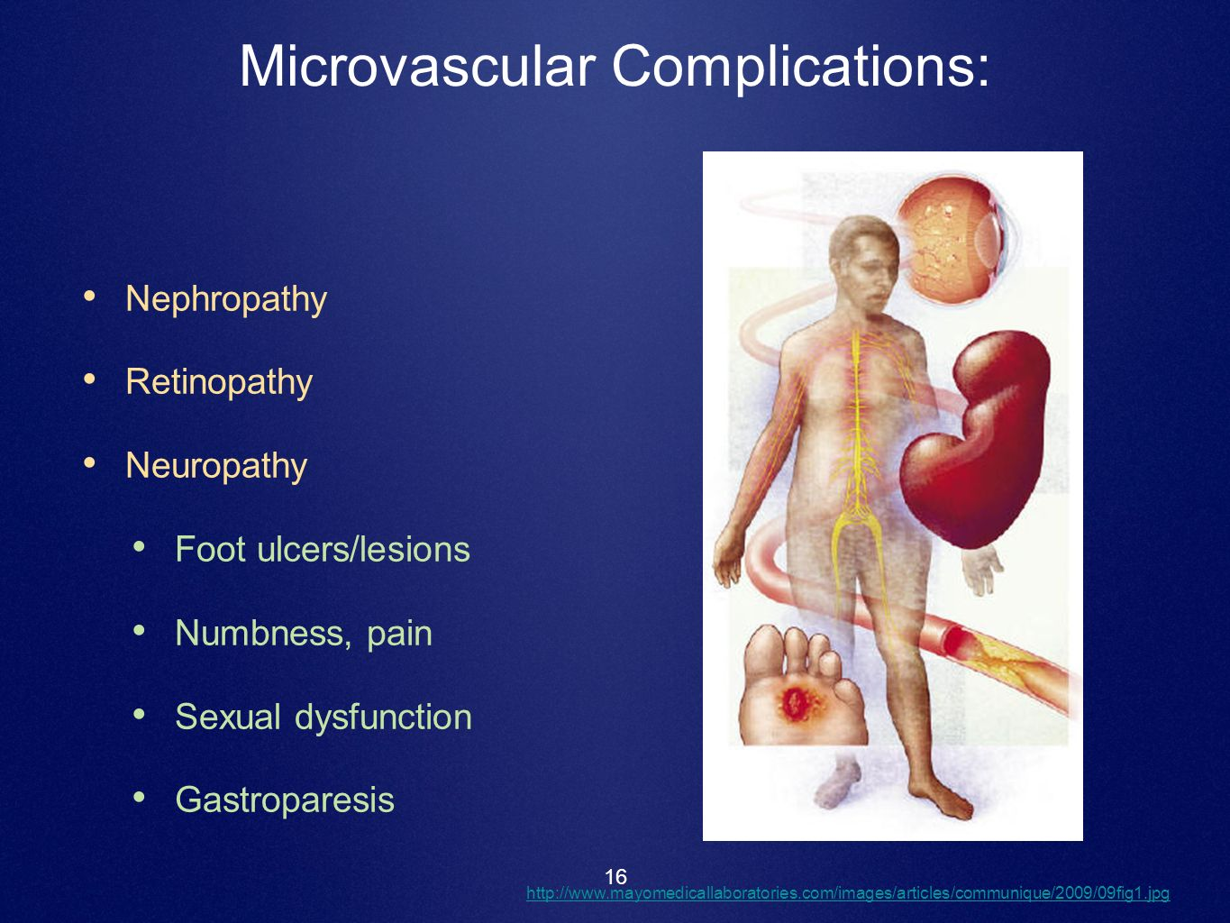 16 Microvascular Complications: Nephropathy Retinopathy Neuropathy Foot ulcers/lesions Numbness, pain Sexual dysfunction Gastroparesis http://www.mayo