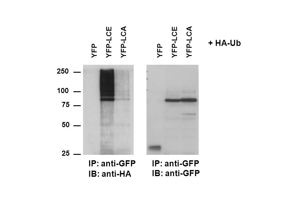 250 100 75 50 25 IB: anti-HA IP: anti-GFP IB: anti-GFP IP: anti-GFP YFPYFP-LCEYFP-LCAYFPYFP-LCEYFP-LCA + HA-Ub