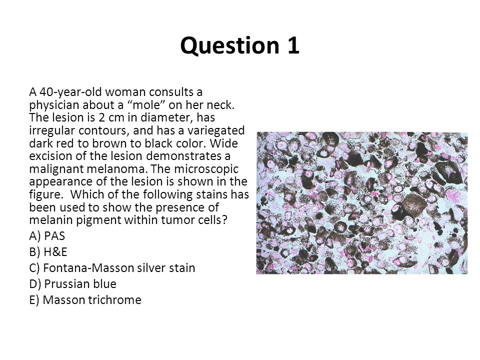 Question 1 A 40-year-old woman consults a physician about a mole on her neck. The lesion is 2 cm in diameter, has irregular contours, and has a varieg