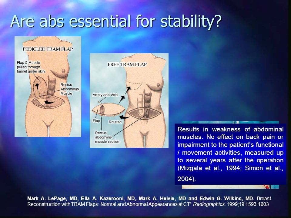 Are abs essential for stability? Weight gains and obesity are only weakly associated with LBP (Leboeuf-Yde, 2000)