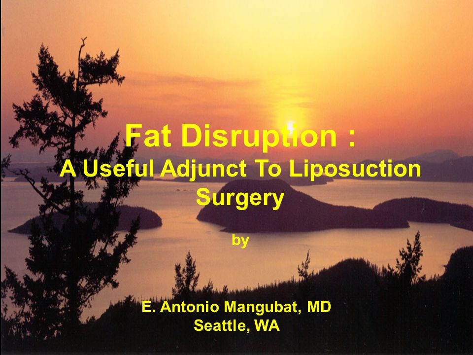 E. Antonio Mangubat, MD Seattle, WA Fat Disruption : A Useful Adjunct To Liposuction Surgery by