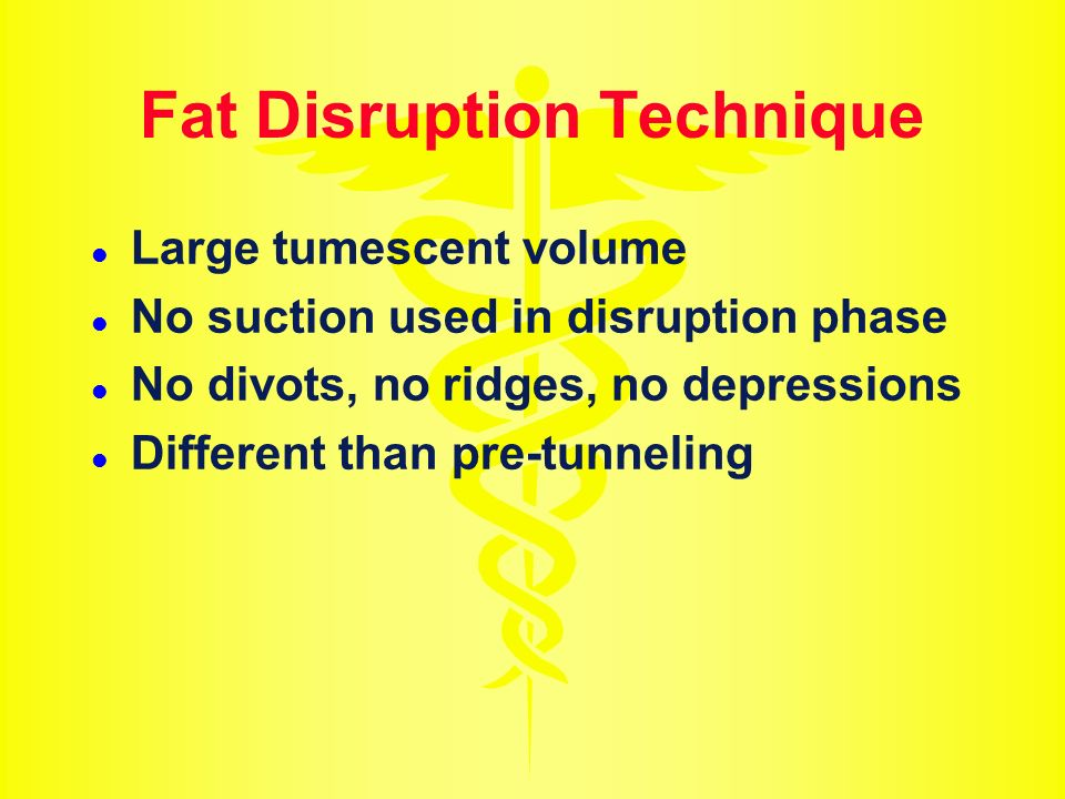 Fat Disruption Technique Large tumescent volume No suction used in disruption phase No divots, no ridges, no depressions Different than pre-tunneling