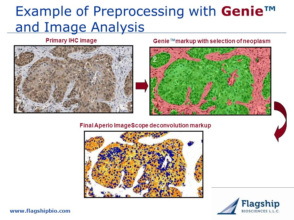 www.flagshipbio.com Example of Preprocessing with Genie and Image Analysis Primary IHC image Geniemarkup with selection of neoplasm Final Aperio Image