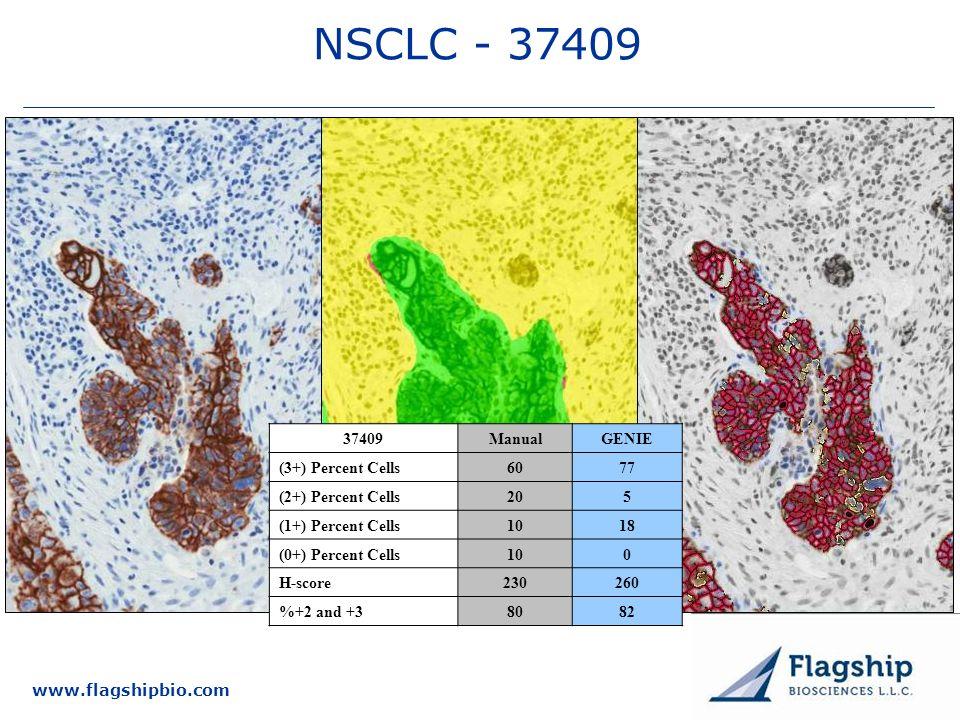 www.flagshipbio.com NSCLC - 37409 37409ManualGENIE (3+) Percent Cells6077 (2+) Percent Cells205 (1+) Percent Cells1018 (0+) Percent Cells100 H-score23