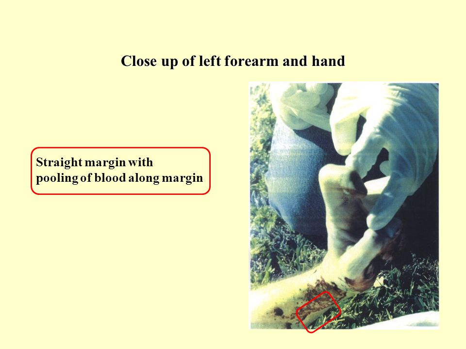 Close up of left forearm and hand Straight margin with pooling of blood along margin