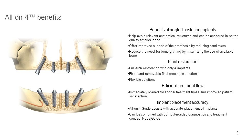 3 All-on-4 benefits Benefits of angled posterior implants: Help avoid relevant anatomical structures and can be anchored in better quality anterior bo