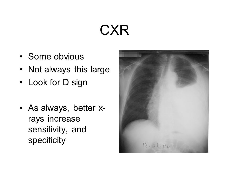 CXR Some obvious Not always this large Look for D sign As always, better x- rays increase sensitivity, and specificity