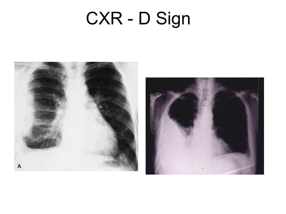 CXR - D Sign