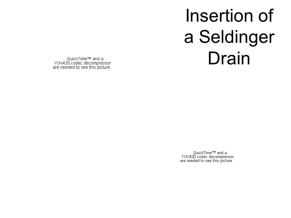 Insertion of a Seldinger Drain
