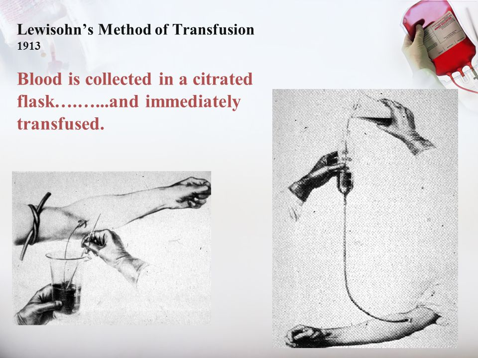 Lewisohns Method of Transfusion 1913 Blood is collected in a citrated flask….…...and immediately transfused.
