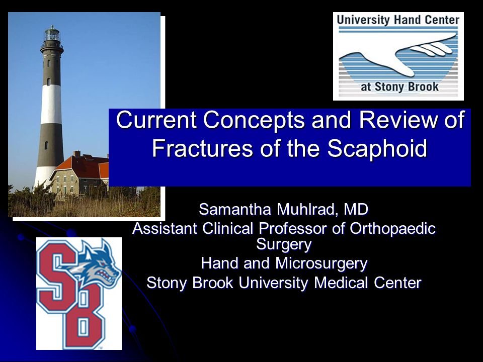 Current Concepts and Review of Fractures of the Scaphoid Samantha Muhlrad, MD Assistant Clinical Professor of Orthopaedic Surgery Hand and Microsurger