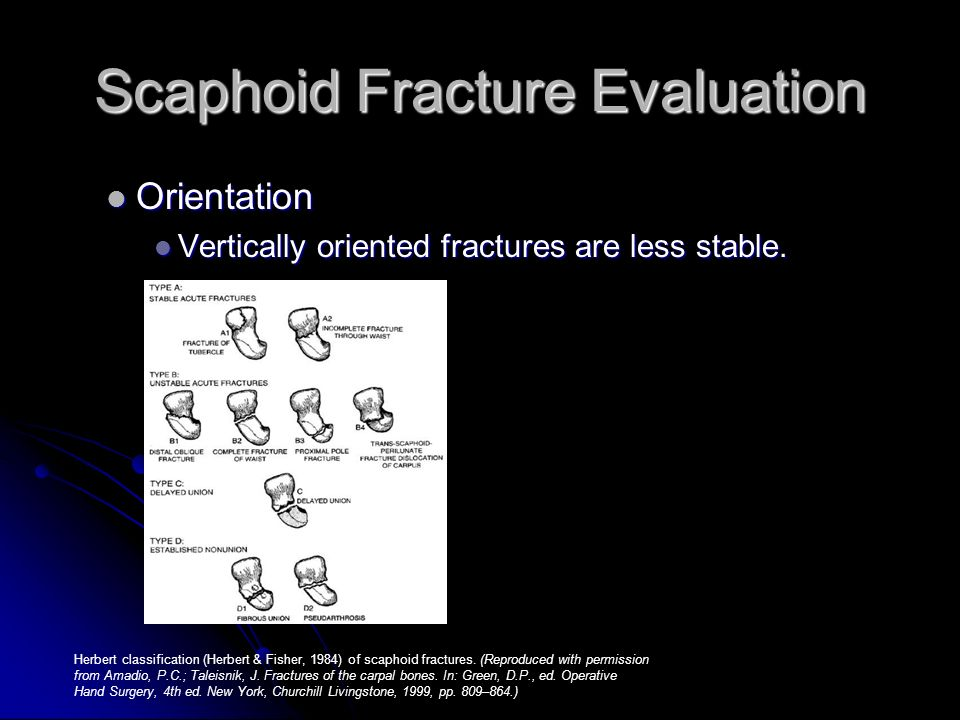 Scaphoid Fracture Evaluation Orientation Orientation Vertically oriented fractures are less stable. Vertically oriented fractures are less stable. Her