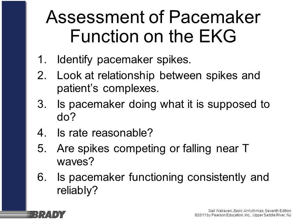 Gail Walraven, Basic Arrhythmias, Seventh Edition ©2011 by Pearson Education, Inc., Upper Saddle River, NJ Assessment of Pacemaker Function on the EKG