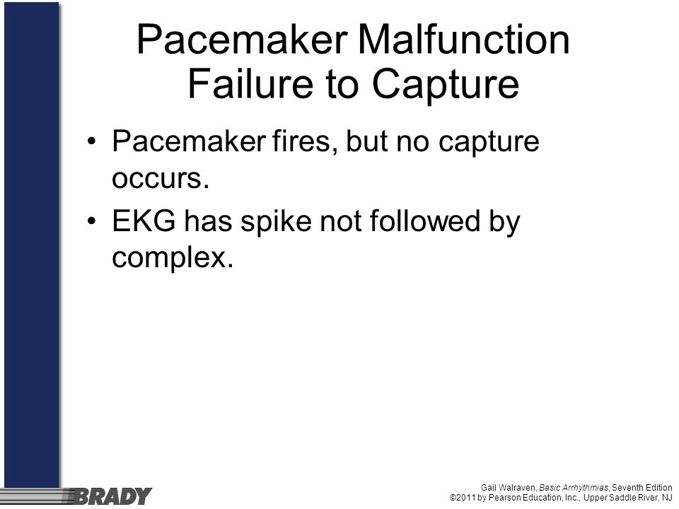 Gail Walraven, Basic Arrhythmias, Seventh Edition ©2011 by Pearson Education, Inc., Upper Saddle River, NJ Pacemaker Malfunction Failure to Capture Pa