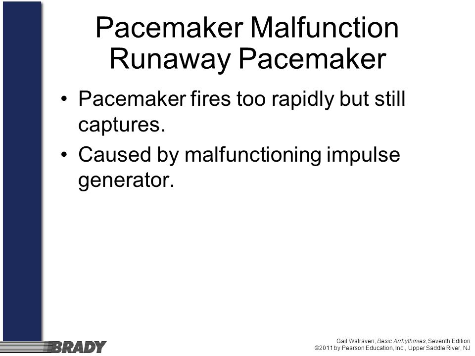 Gail Walraven, Basic Arrhythmias, Seventh Edition ©2011 by Pearson Education, Inc., Upper Saddle River, NJ Pacemaker Malfunction Runaway Pacemaker Pac