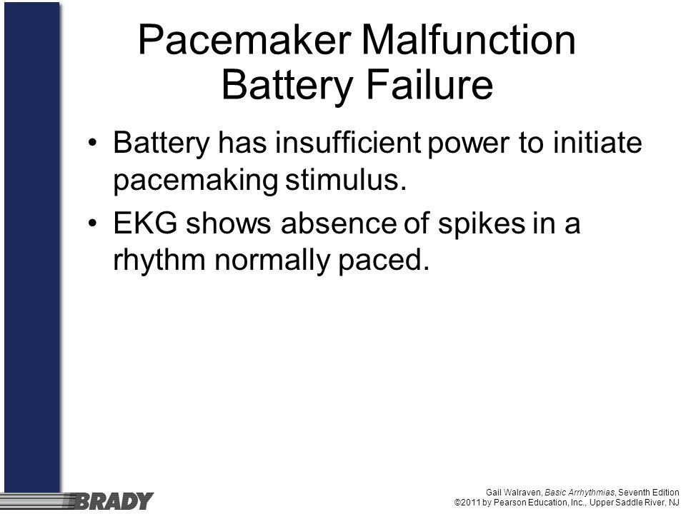 Gail Walraven, Basic Arrhythmias, Seventh Edition ©2011 by Pearson Education, Inc., Upper Saddle River, NJ Pacemaker Malfunction Battery Failure Batte