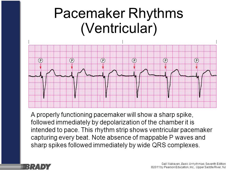 Gail Walraven, Basic Arrhythmias, Seventh Edition ©2011 by Pearson Education, Inc., Upper Saddle River, NJ Pacemaker Rhythms (Ventricular) A properly