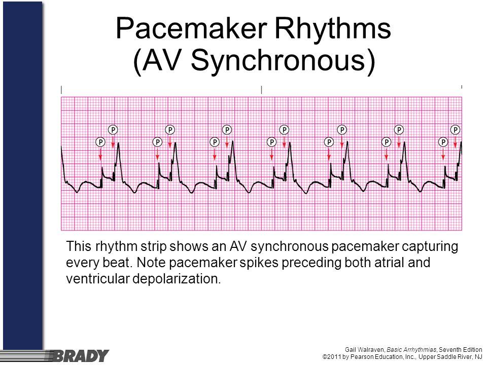 Gail Walraven, Basic Arrhythmias, Seventh Edition ©2011 by Pearson Education, Inc., Upper Saddle River, NJ Pacemaker Rhythms (AV Synchronous) This rhy