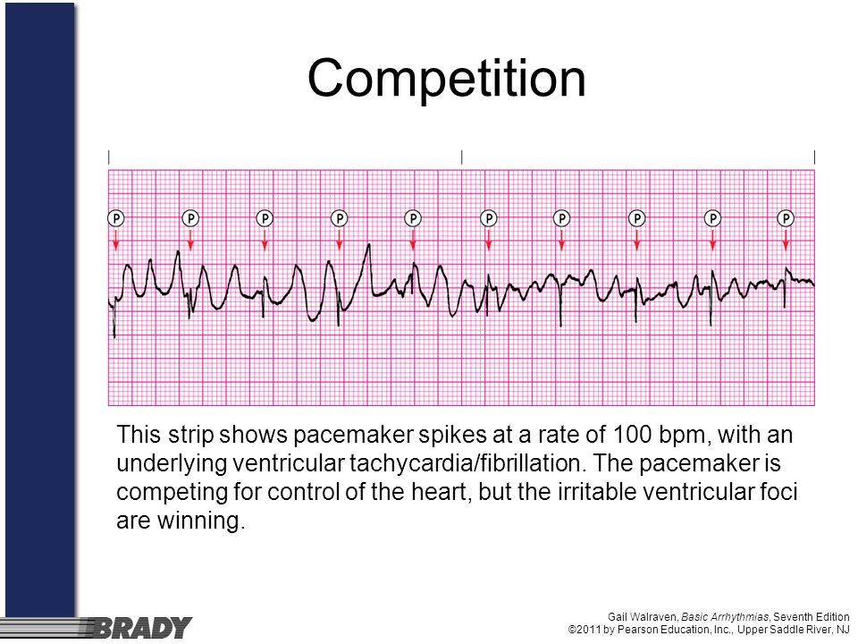 Gail Walraven, Basic Arrhythmias, Seventh Edition ©2011 by Pearson Education, Inc., Upper Saddle River, NJ Competition This strip shows pacemaker spik