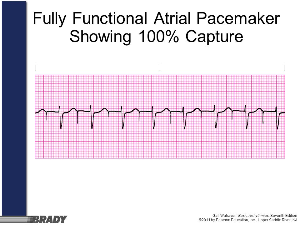 Gail Walraven, Basic Arrhythmias, Seventh Edition ©2011 by Pearson Education, Inc., Upper Saddle River, NJ Fully Functional Atrial Pacemaker Showing 1