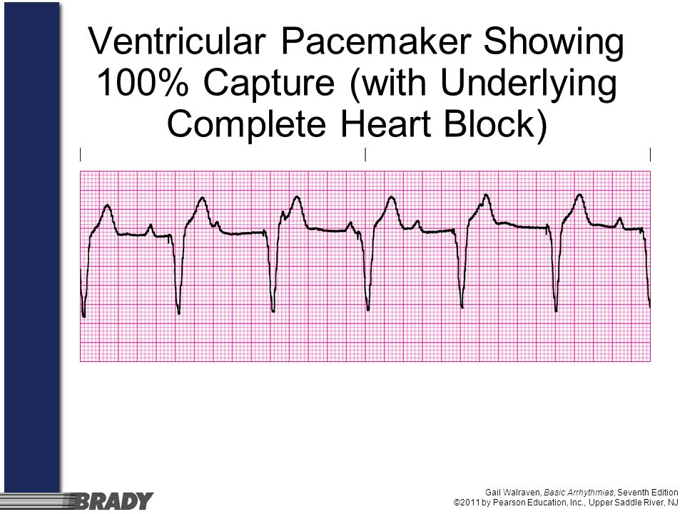 Gail Walraven, Basic Arrhythmias, Seventh Edition ©2011 by Pearson Education, Inc., Upper Saddle River, NJ Ventricular Pacemaker Showing 100% Capture