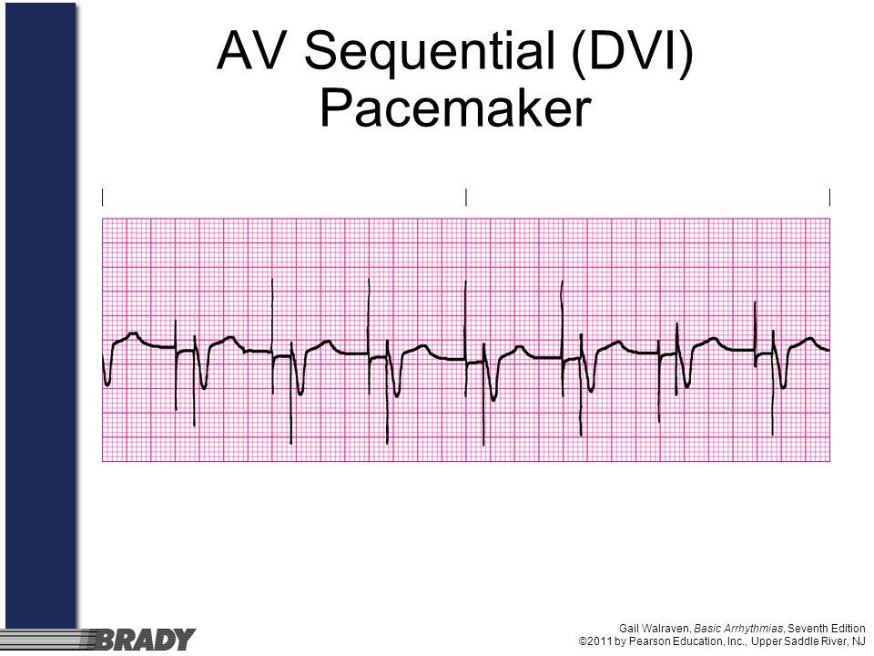 Gail Walraven, Basic Arrhythmias, Seventh Edition ©2011 by Pearson Education, Inc., Upper Saddle River, NJ AV Sequential (DVI) Pacemaker