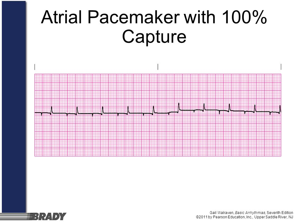 Gail Walraven, Basic Arrhythmias, Seventh Edition ©2011 by Pearson Education, Inc., Upper Saddle River, NJ Atrial Pacemaker with 100% Capture