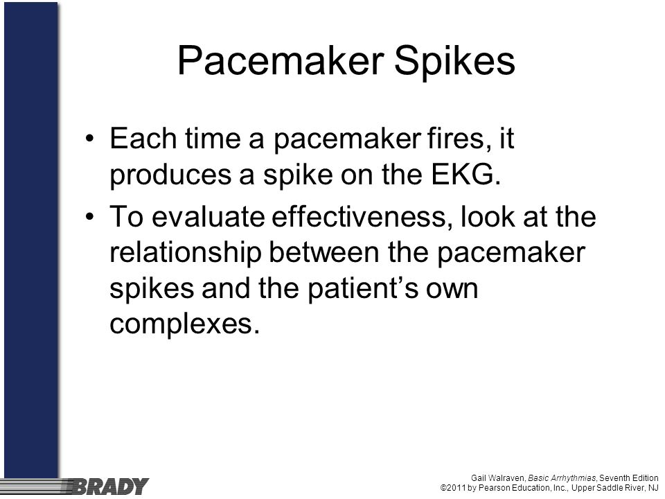 Gail Walraven, Basic Arrhythmias, Seventh Edition ©2011 by Pearson Education, Inc., Upper Saddle River, NJ Pacemaker Spikes Each time a pacemaker fire