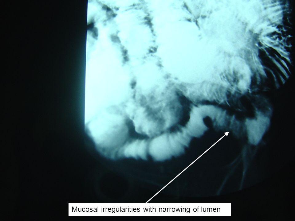 Mucosal irregularities with narrowing of lumen