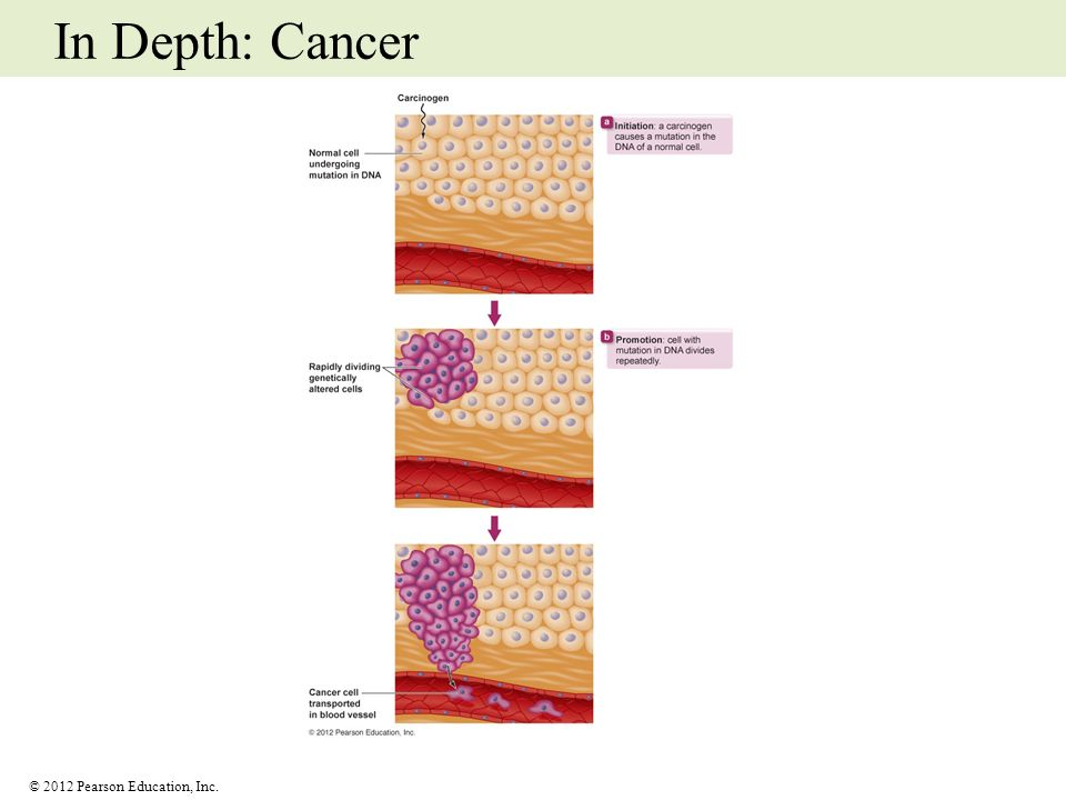 © 2012 Pearson Education, Inc. In Depth: Cancer