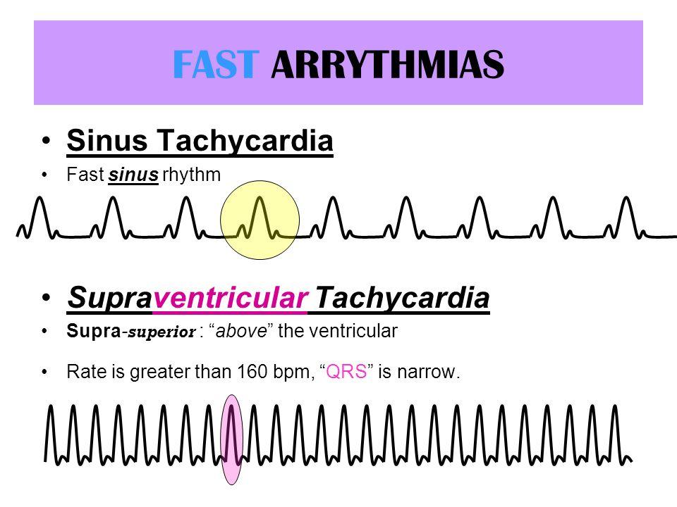 FAST ARRYTHMIAS Sinus Tachycardia Fast sinus rhythm Supraventricular Tachycardia Supra- superior : above the ventricular Rate is greater than 160 bpm,