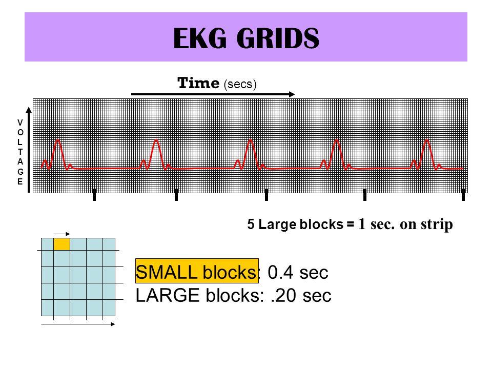 EKG GRIDS Time (secs) VOLTAGEVOLTAGE SMALL blocks: 0.4 sec LARGE blocks:.20 sec 5 Large blocks = 1 sec. on strip