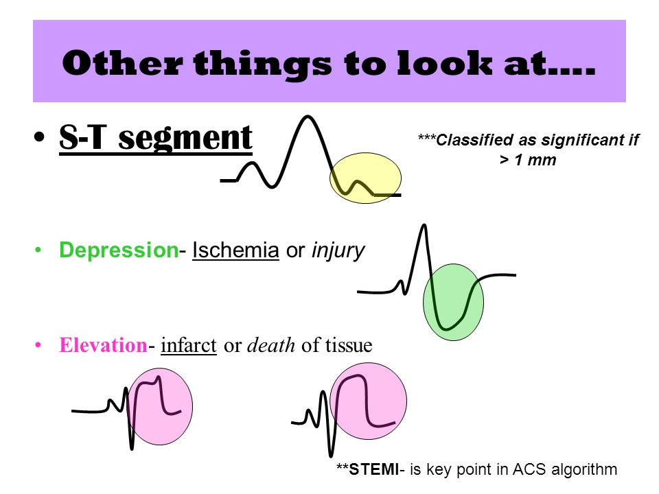 Other things to look at…. S-T segment Depression- Ischemia or injury Elevation- infarct or death of tissue **STEMI- is key point in ACS algorithm ***C
