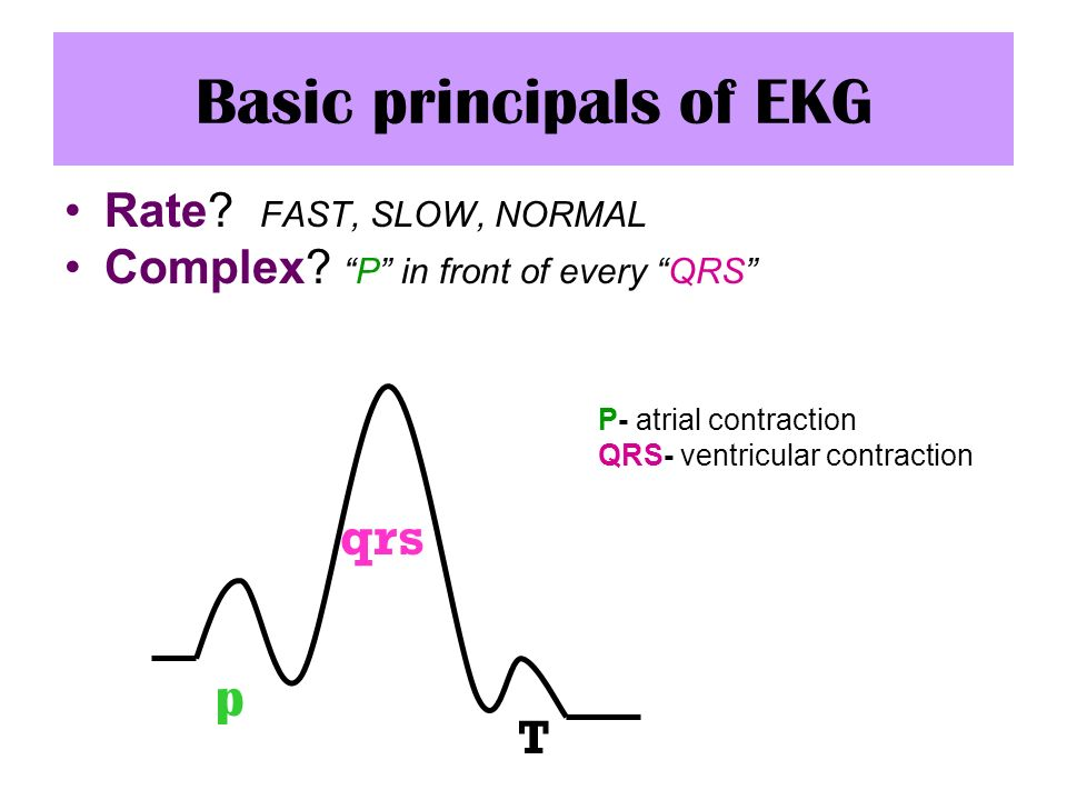 Basic principals of EKG Rate? FAST, SLOW, NORMAL Complex?P in front of every QRS P- atrial contraction QRS- ventricular contraction p qrs T