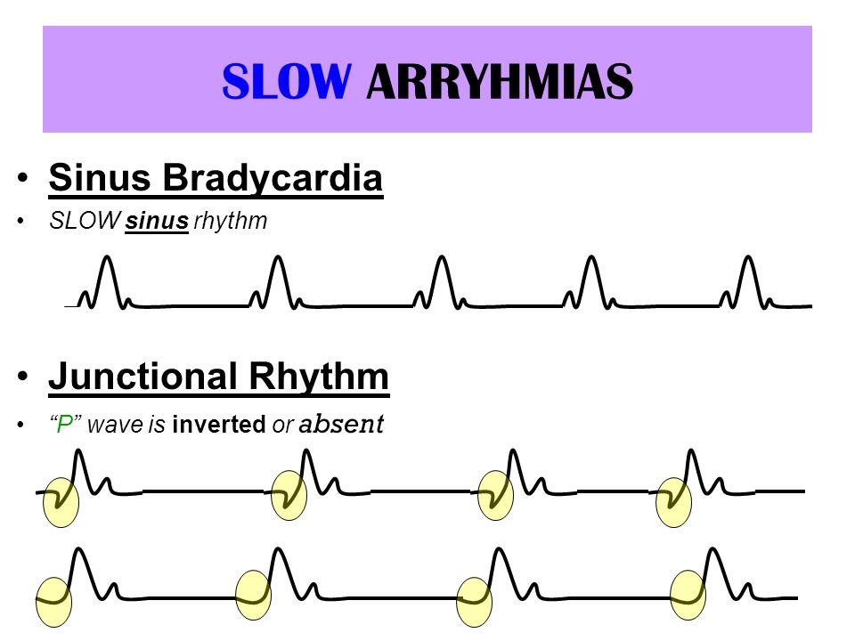 SLOW ARRYHMIAS Sinus Bradycardia SLOW sinus rhythm Junctional Rhythm P wave is inverted or absent