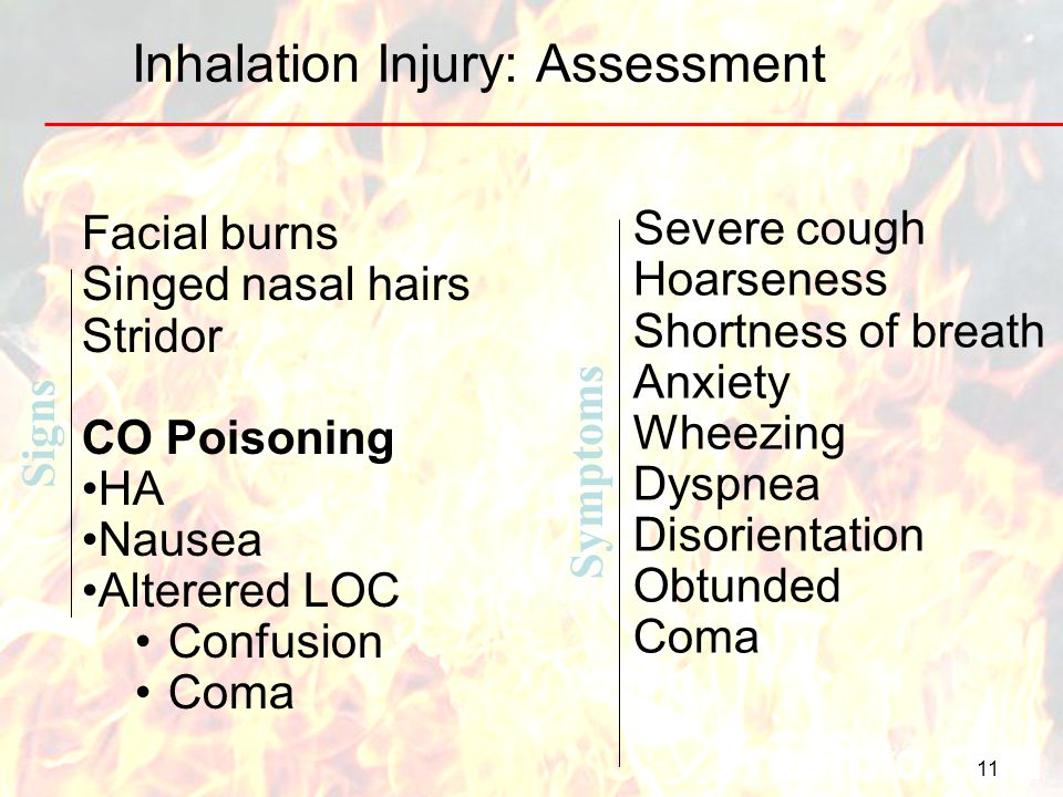 11 Inhalation Injury: Assessment Facial burns Singed nasal hairs Stridor CO Poisoning HA Nausea Alterered LOC Confusion Coma Severe cough Hoarseness S