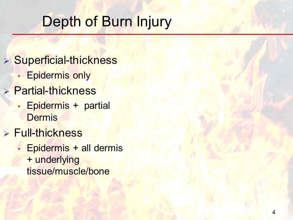 Depth of Burn Injury 4 Superficial-thickness Epidermis only Partial-thickness Epidermis + partial Dermis Full-thickness Epidermis + all dermis + under