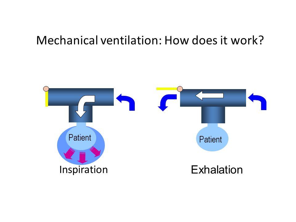 Mechanical ventilation: How does it work? Patient Exhalation Patient Inspiration