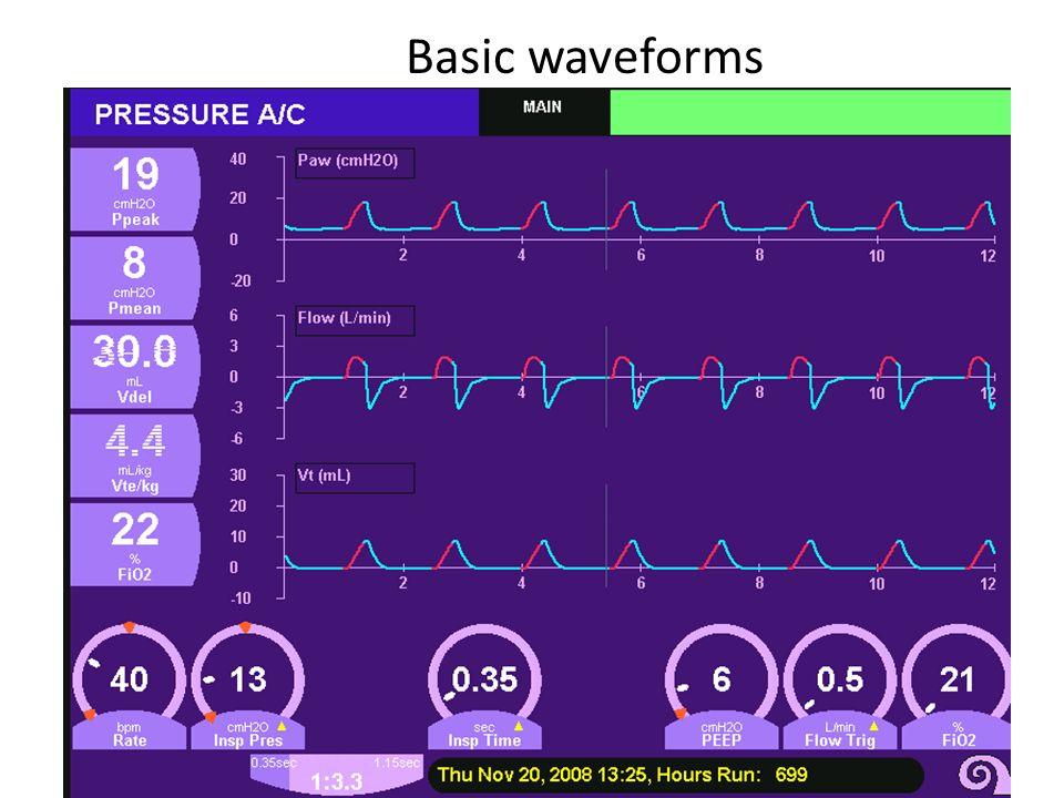 Basic waveforms