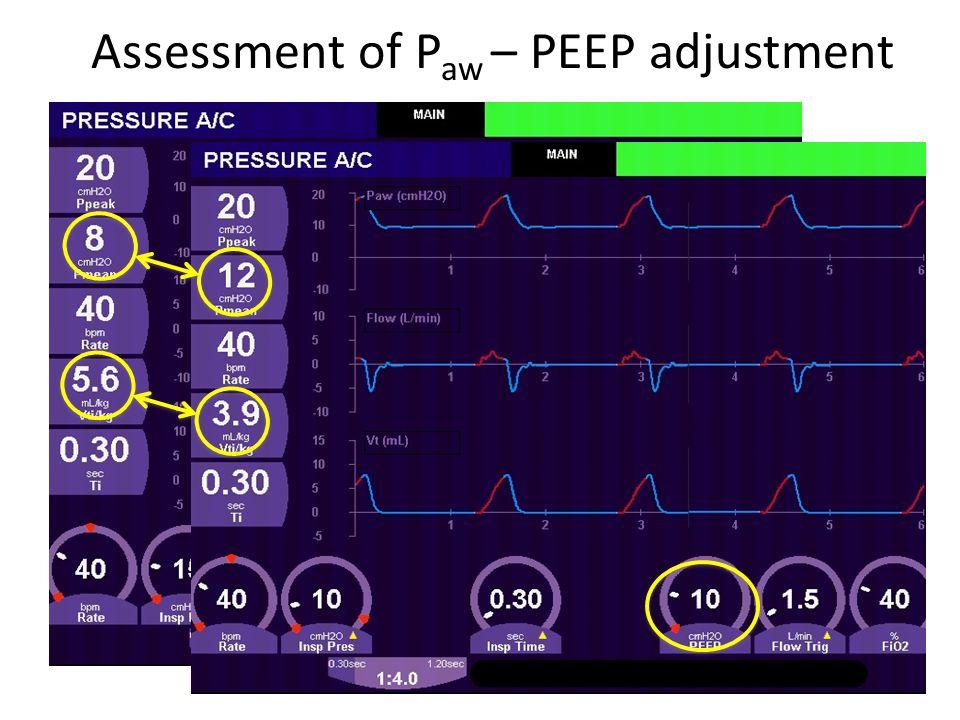 Assessment of P aw – PEEP adjustment