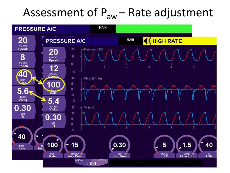 Assessment of P aw – Rate adjustment