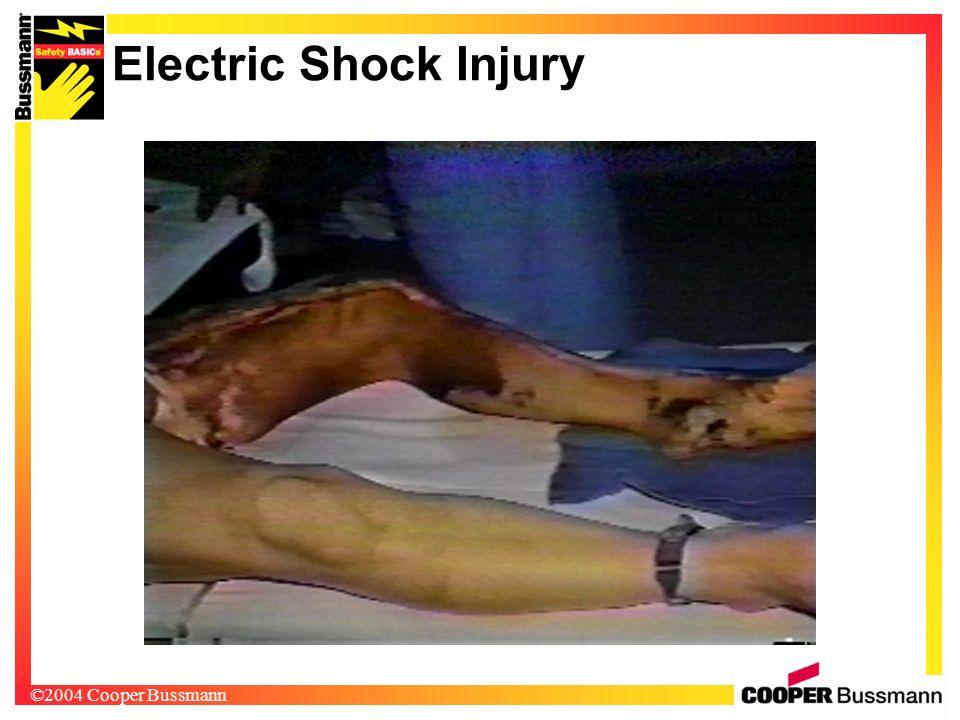 ©2004 Cooper Bussmann Electric Shock Injury