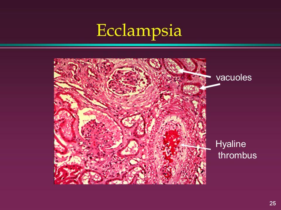 25 Ecclampsia Hyaline thrombus vacuoles