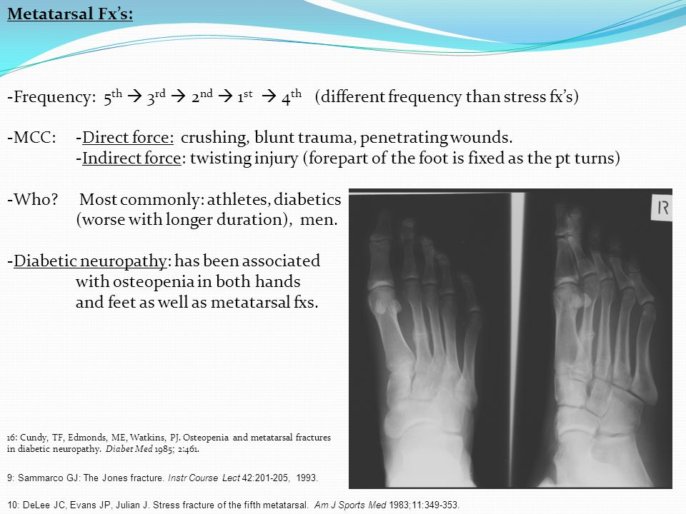 Metatarsal Fxs: -Frequency: 5 th 3 rd 2 nd 1 st 4 th (different frequency than stress fxs) -MCC: -Direct force: crushing, blunt trauma, penetrating wo